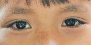 Ojos de niño